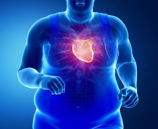 Thừa cân gây ra nhiều bệnh lý nguy hiểm