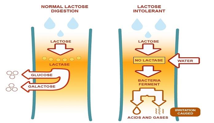 Khí và acid là nguyên nhân gây ra các triệu chứng ở người bất dung nạp Lactose